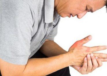 """""""Bệnh gout"""" phần lớn do béo phì gây ra"""