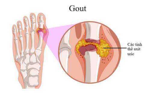benh-gout-beo-phi